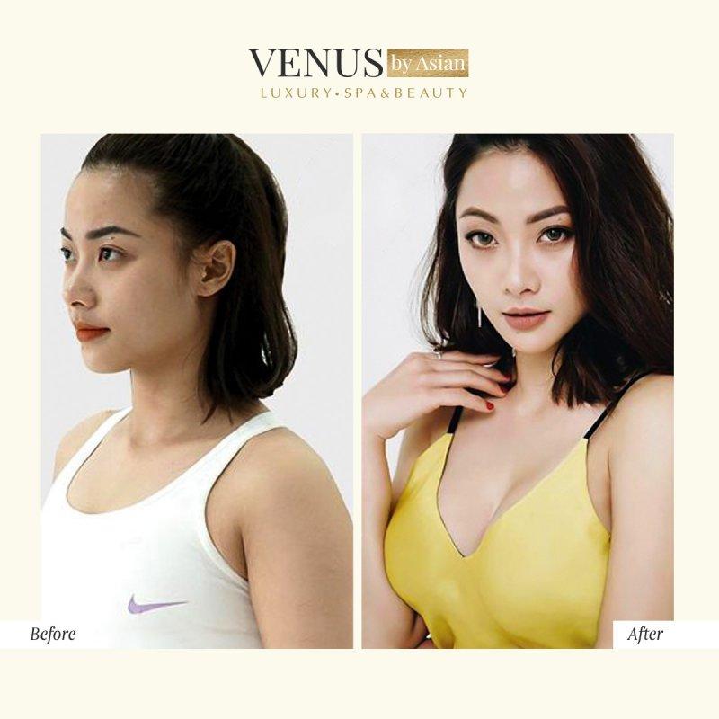 Đại phẫu nâng ngực là thế mạnh của Phòng khám Venus By Asian