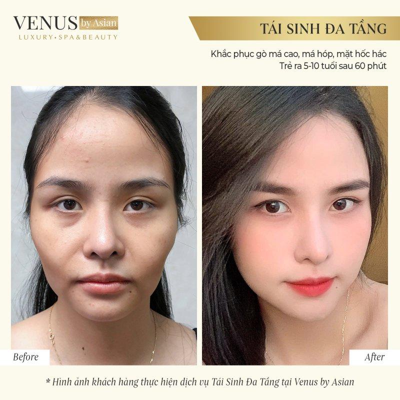 Khuôn mặt thay đổi hoàn toàn của khách hàng sau thực hiện Tái sinh đa tầng
