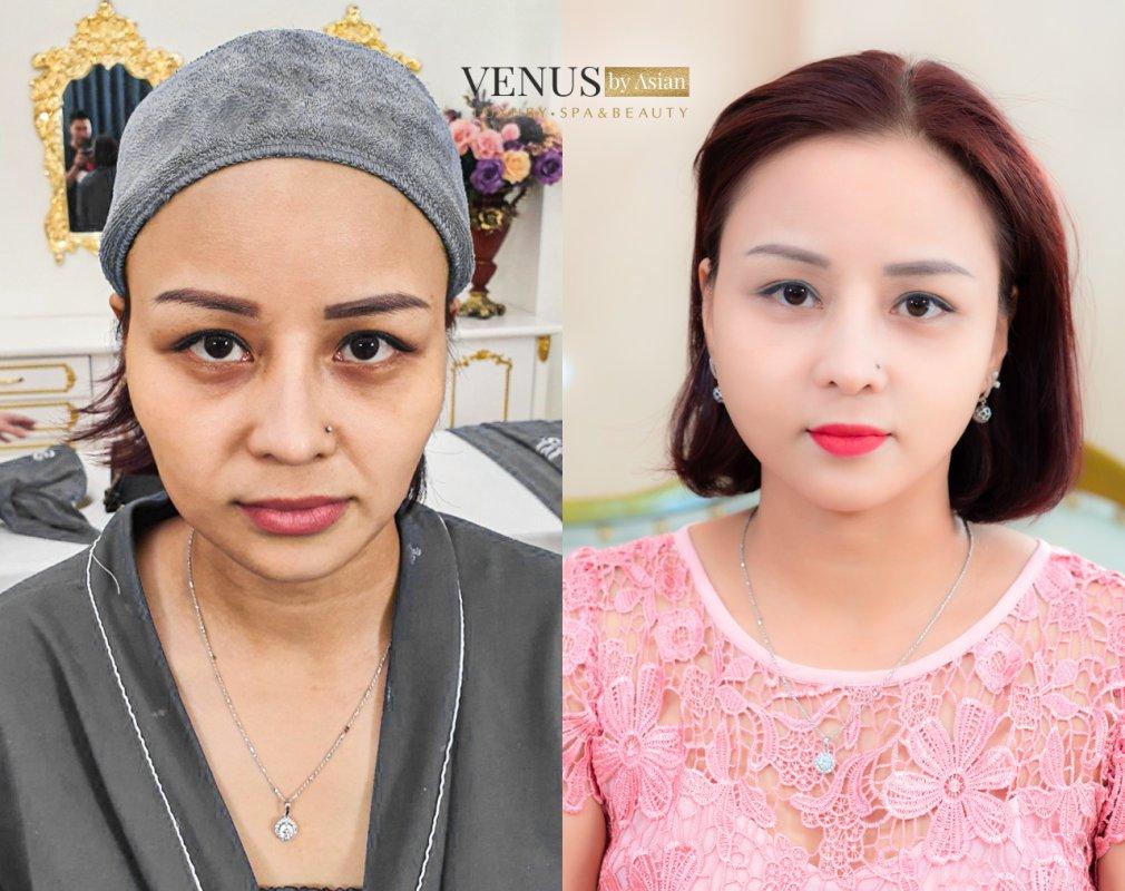 HIệu quả của khách hàng khi thực hiện căng da mặt tại Venus by Asian