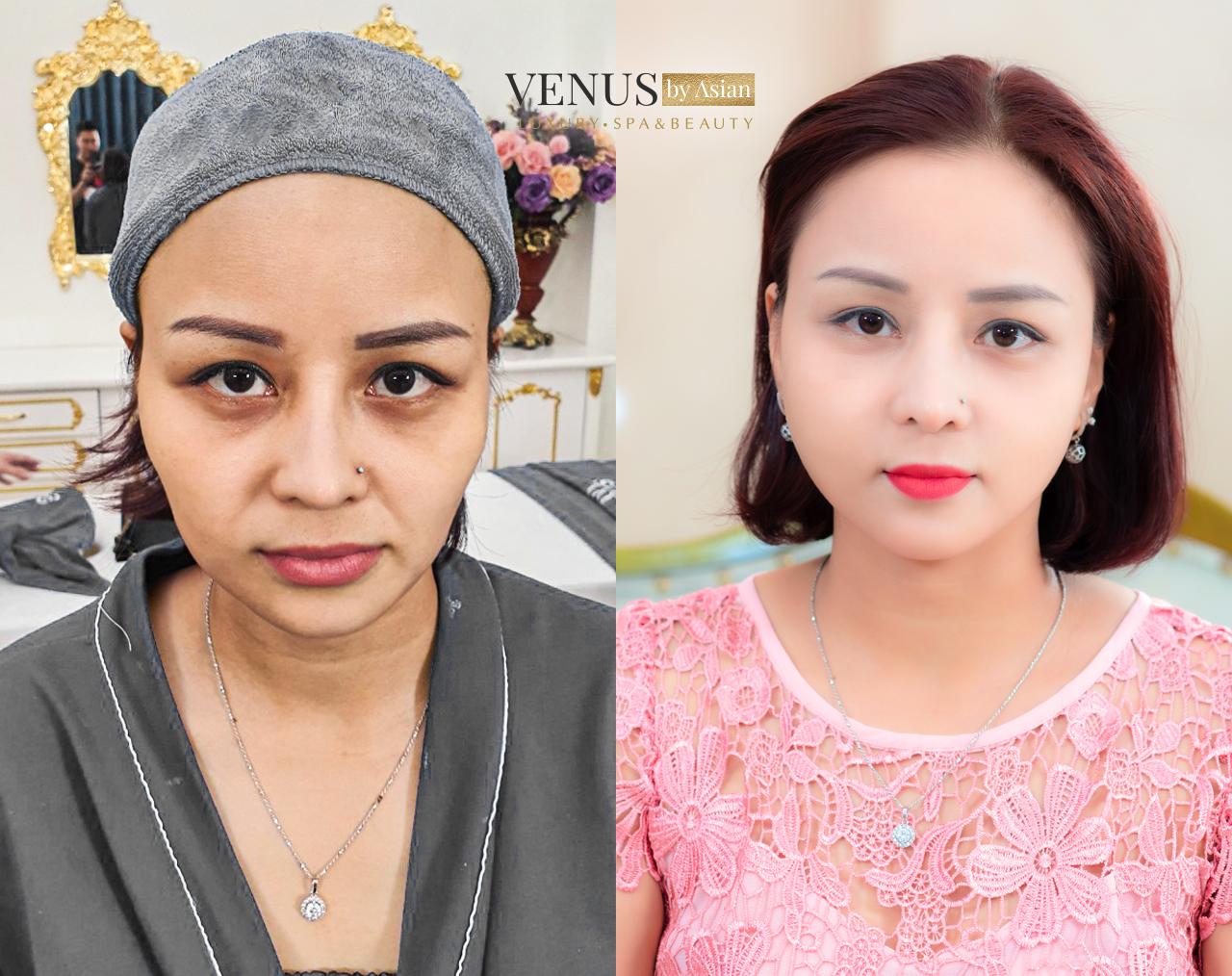 Hình ảnh khách hàng thực hiện Tái Sinh Đa Tầng tại Phòng khám Venus by Asian