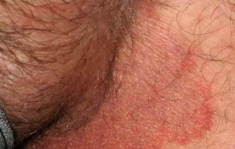 Triệu chứng ở nam giới