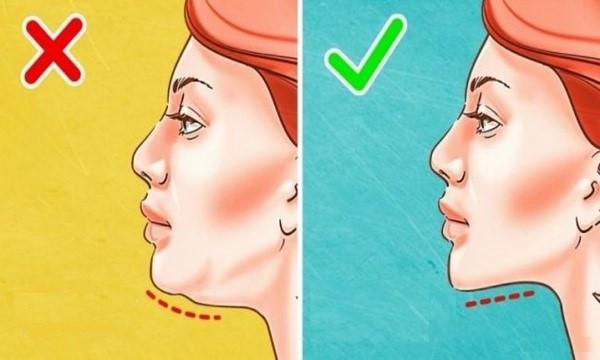 Béo mặt khiến chị em thiếu tự tin