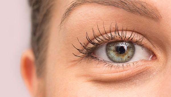 Những nguyên nhân gây bọng mỡ mắt