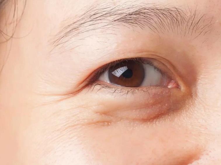 Mỡ mí mắt là hiện tượng các mô mỡ tích tụ lâu ngày