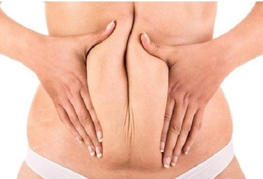 Mỡ bụng: nỗi lo của nhiều chị em phụ nữ