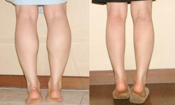 Hút mỡ bắp chân cho hiệu quả cao