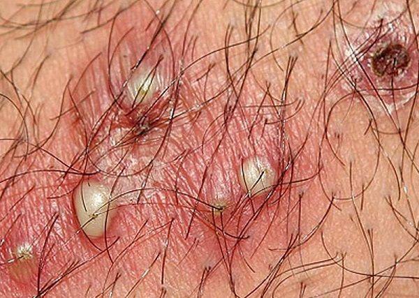 Viêm nang lông khiến người bệnh khó chịu, mọc mụn bọc màu trắng
