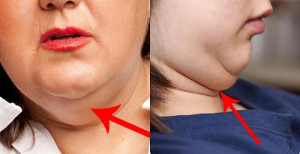 Hiện nay béo mặt là nỗi lo của hầu hết các chị em (Hình minh họa)