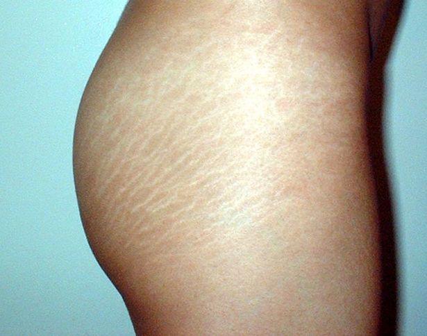 Tăng cân quá nhanh cũng là nguyên nhân gây ra tình trạng rạn da