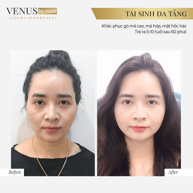 Hình ảnh thực tế của khách hàng trước và sau khi thực hiện dịch vụ tại Venus by Asian