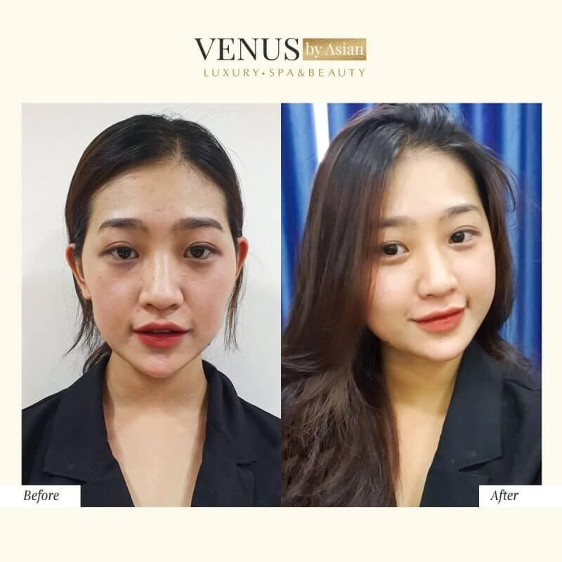 Khuôn mặt trở nên baby, rạng rỡ, tươi tắn hơn của khách hàng sau 60 phút tại Venus by Asian