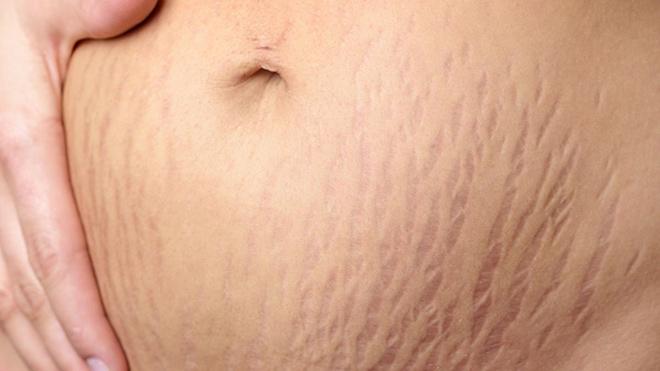 Rạn da xuất hiện bởi nhiều nguyên nhân khác nhau