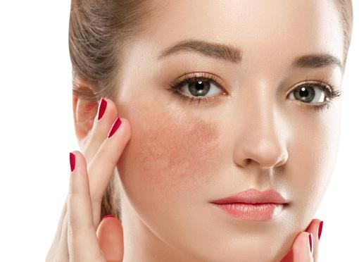 Sạm da mặt do nhiều nguyên nhân
