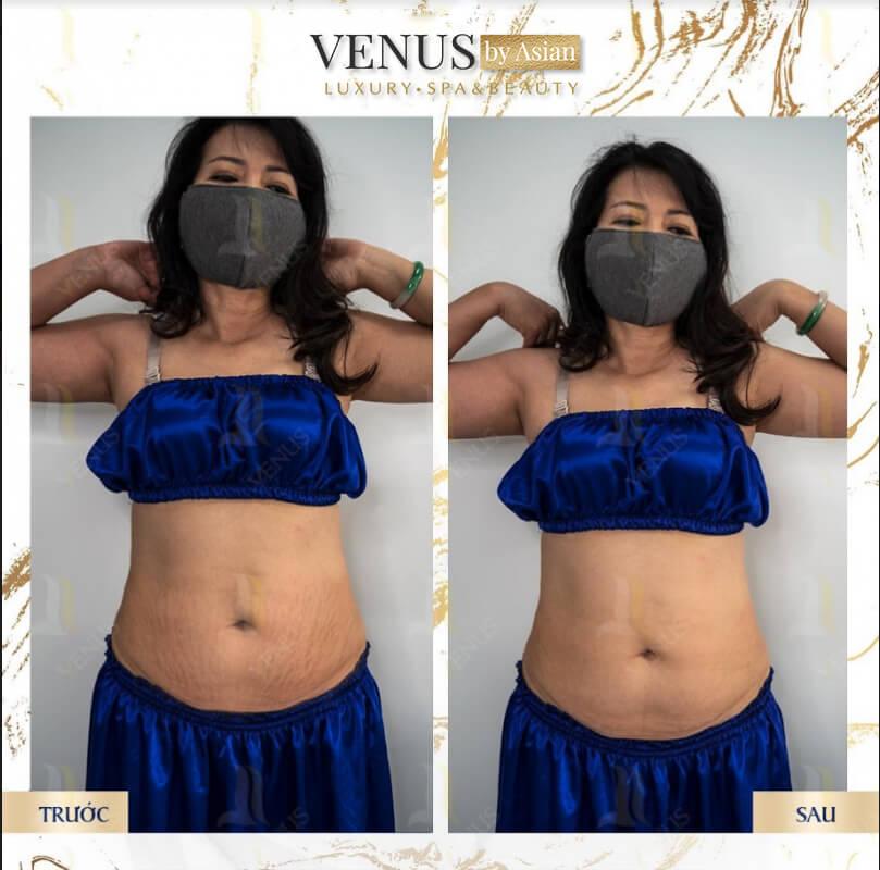 Khách hàng trị rạn da tại Venus by Asian