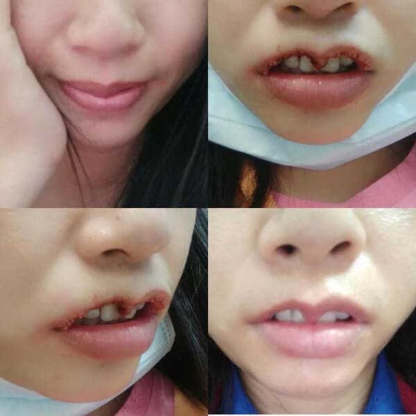 Phẫu thuật môi bị hỏng