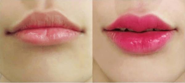 Hình ảnh môi trước và sau khi tiêm filler môi cánh én