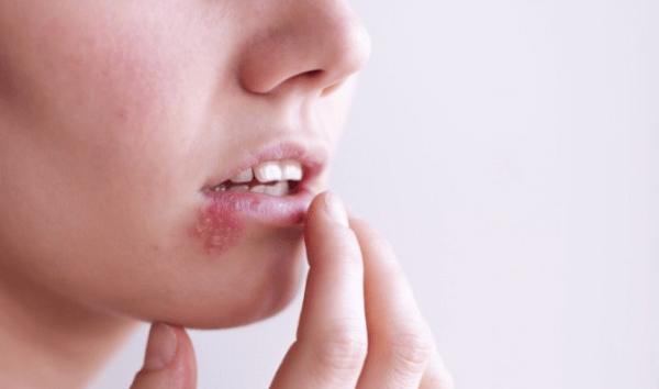 Mụn mọc trên môi gây khó chịu, đau rát