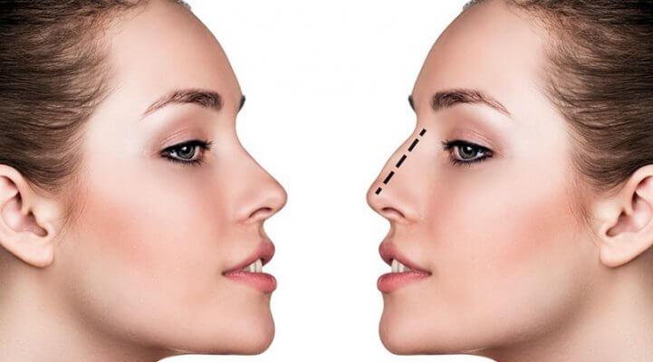 Mũi cao, thẳng, đẹp luôn là điểm hút mắt của khuôn mặt thanh tú, rạng ngời