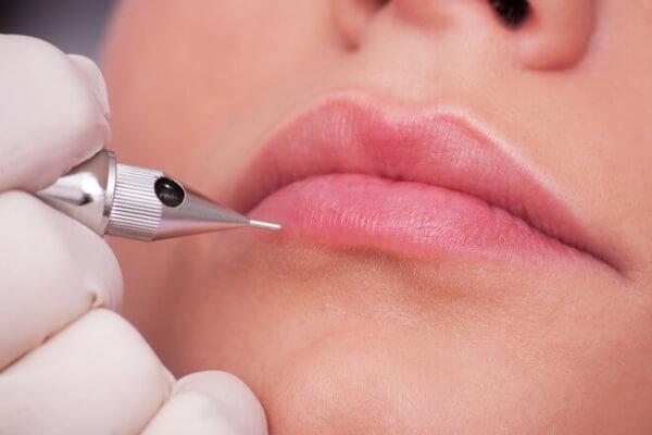 Môi quá dày cần tiến hành phẫu thuật môi dày để tạo được tỷ lệ cân đối trên khuôn mặt