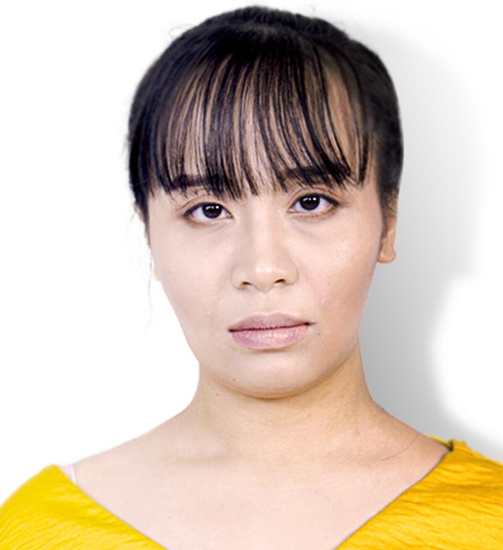 Gò má cao khiến cho gương mặt trở nên mất cân đối, hốc hác