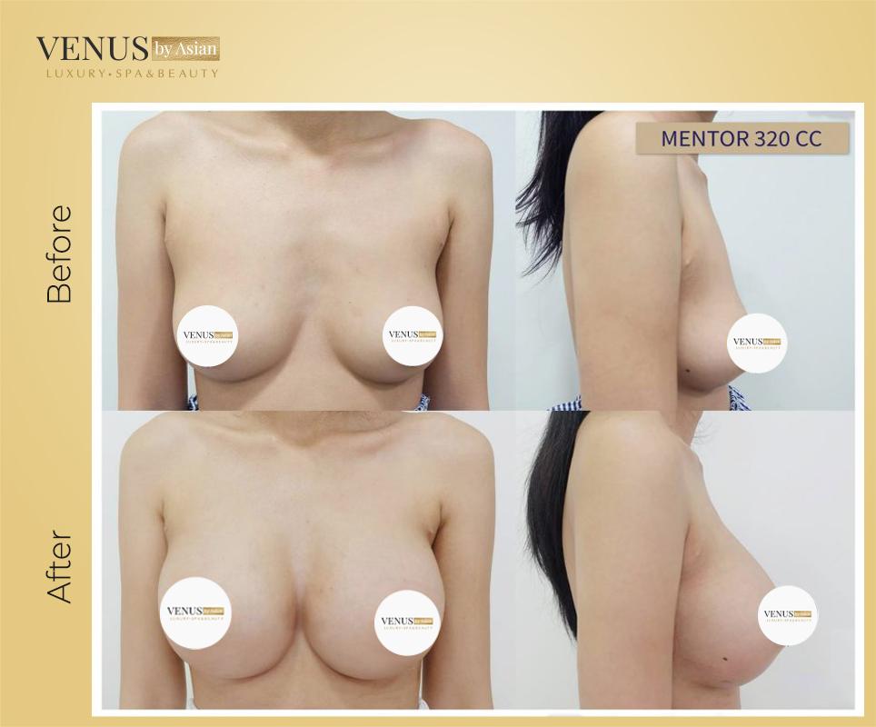 Nâng ngực Nano đẹp, an toàn tại Venus By Asian