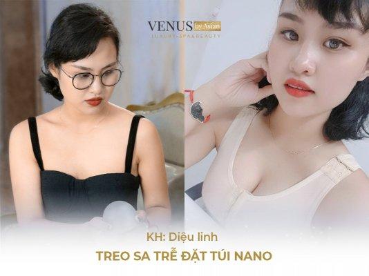Hình ảnh khách hàng trước và sau khi thực hiện phẫu thuật nâng ngực tại Venus by Asian