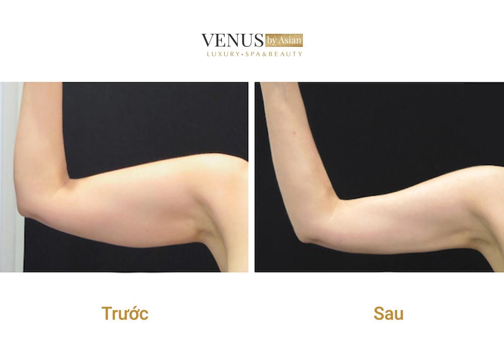 Hình ảnh của khách hàng trước và sau khi thực hiện hút mỡ tại Venus by Asian