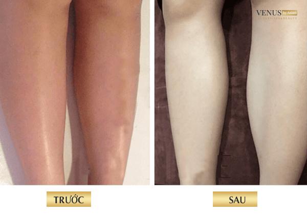 Khách hàng trước và sau khi tắm trắng tại venus by asean