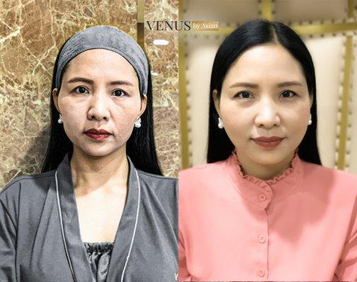 Khách hàng có thể lựa chọn căng da mặt theo vị trí hoặc căng da mặt toàn phần