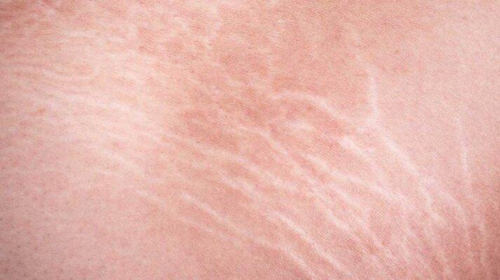 Rạn trắng - vết rạn lâu năm, rất khó điều trị