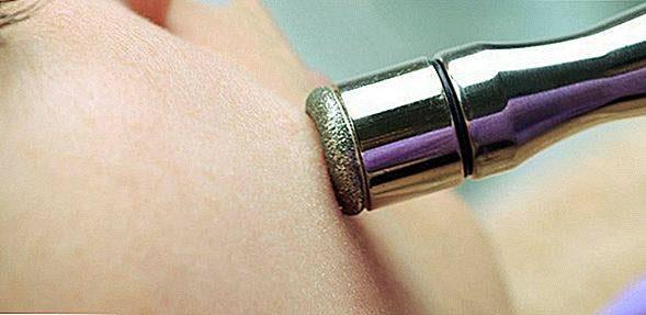 Microdermabrasion rất an toàn, được sử dụng điều trị rạn da lưng ở nam giới