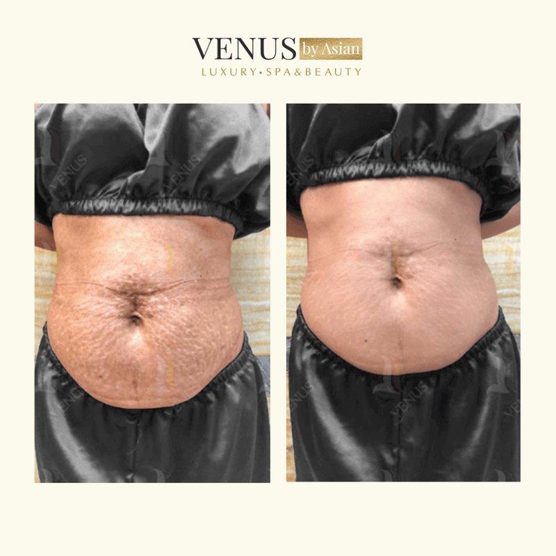 Hiệu quả trước và sau khi trị rạn da tại Venus by Asian