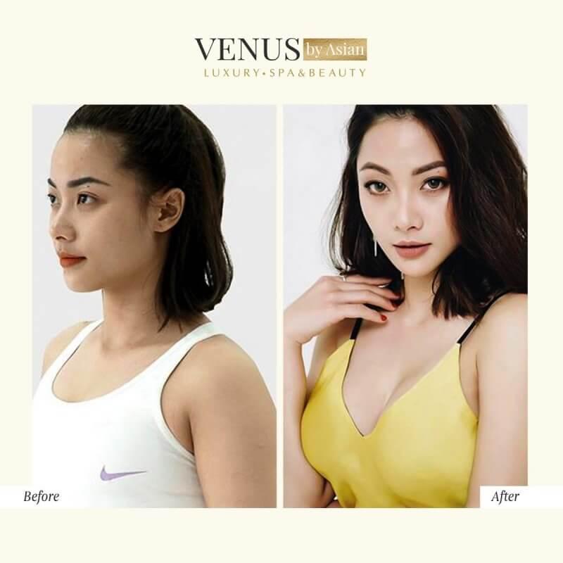 Nâng ngực đẹp tự nhiên, cuốn hút tại Phòng khám Venus By Asian