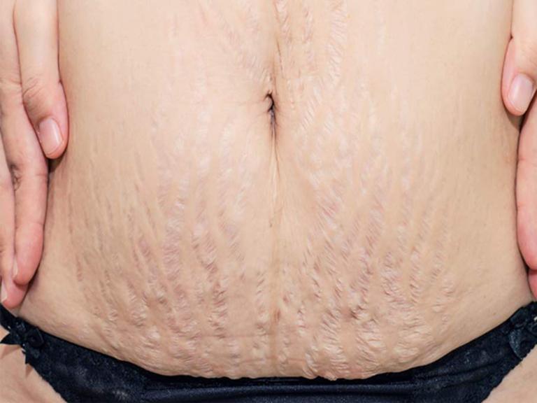 Có rất nhiều nguyên nhân dẫn đến rạn da sau sinh không phải ai cũng biết