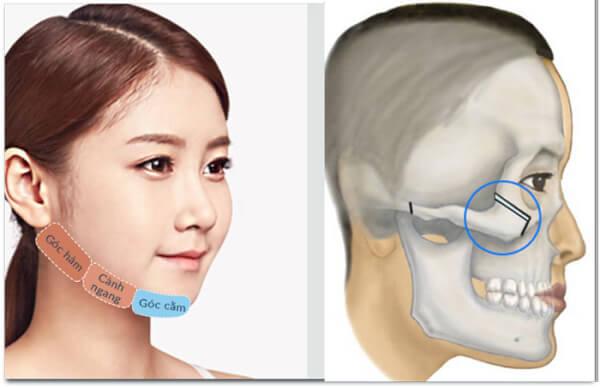 Phẫu thuật cắt xương gò má giúp bạn có được khuôn mặt như ý