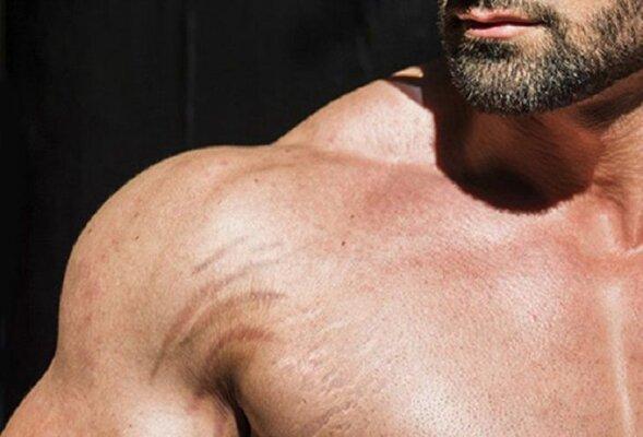 Rạn da ở nam giới hoàn toàn có thể phòng tránh được