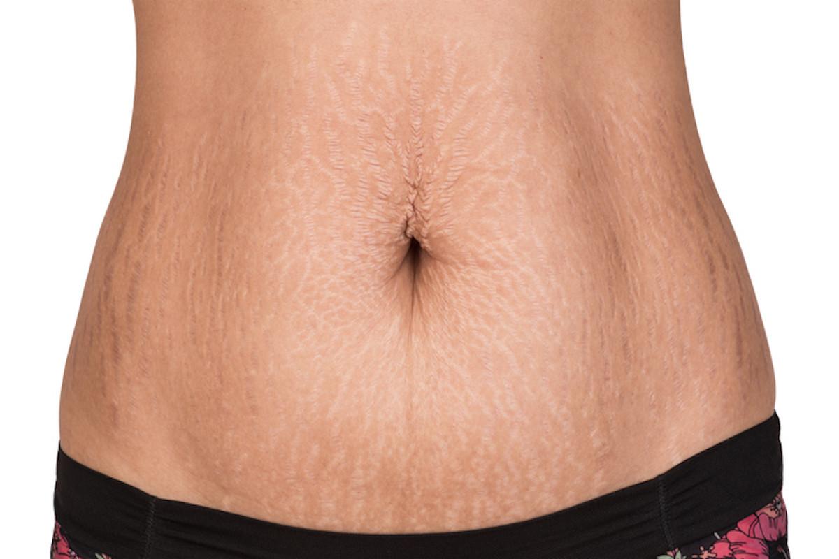 Các vết rạn hình thành sau khi phụ nữ mang thai