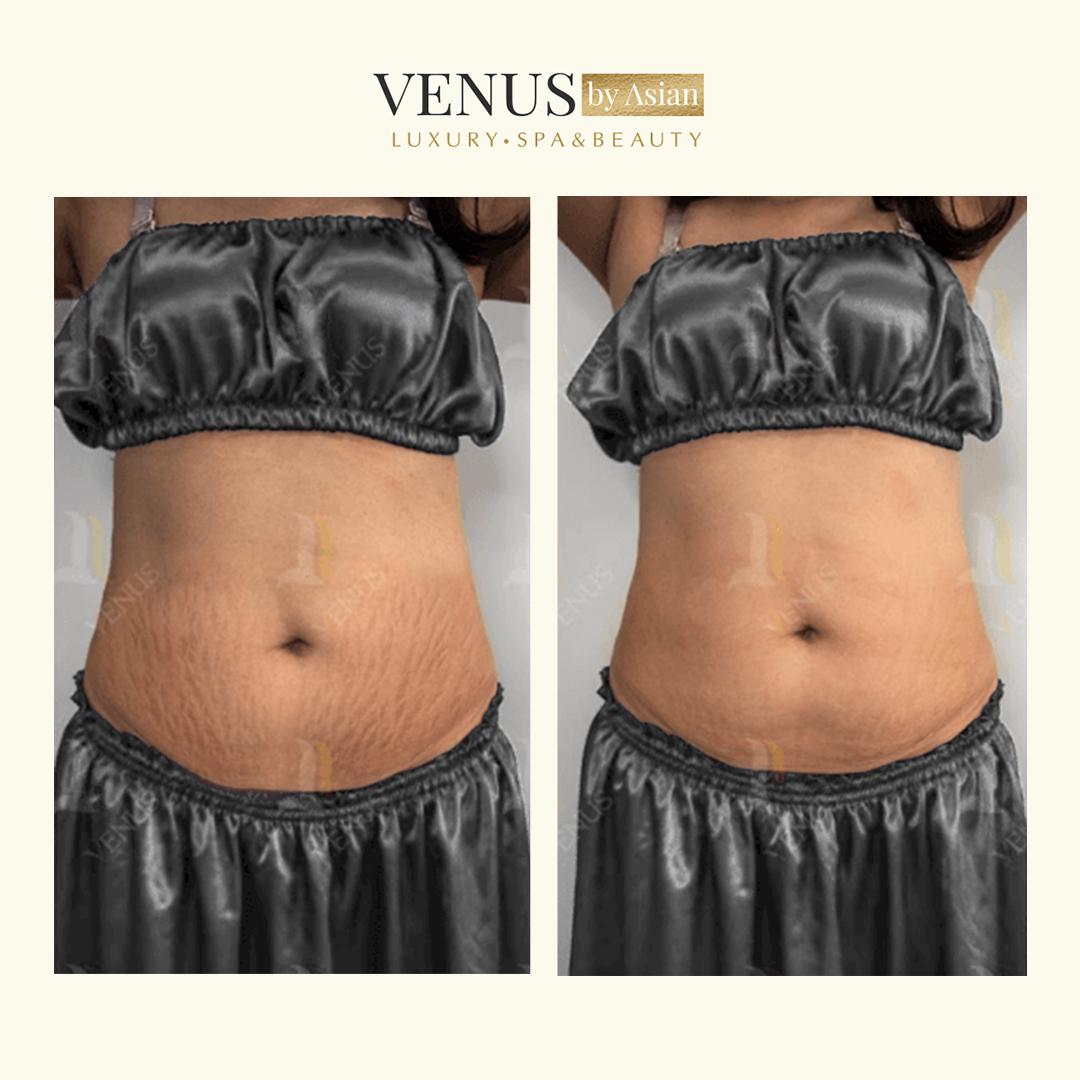Khách hàng điều trị rạn da tại Venus by Asian