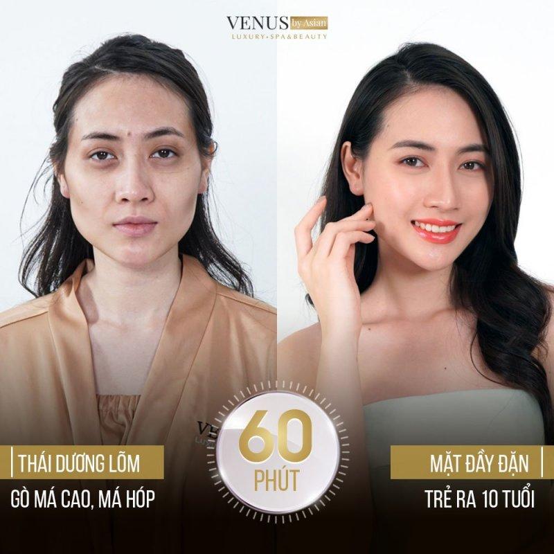 Hình ảnh khách hàng thực hiện dịch vụ tại Venus by Asian