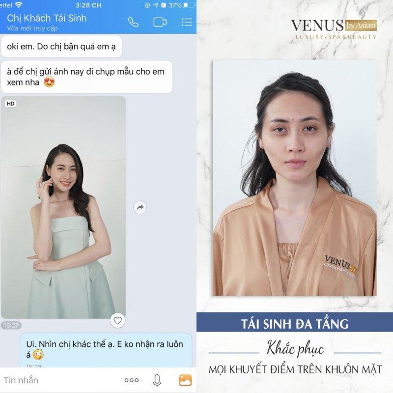 Hàng ngàn khách hàng xóa sổ gò má cao thành công tại Venus by Asian