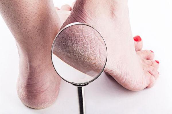 Rất dễ nhầm lẫn bệnh nứt da bàn chân với những bệnh viêm nhiễm ngoài da