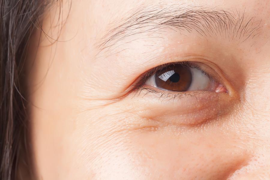 Đặc điểm của vùng da dưới mắt bị chảy xệ