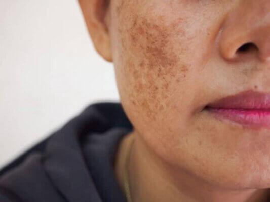 Nám da sau sinh cũng có thể xuất hiện ở nhiều bộ phận của cơ thể