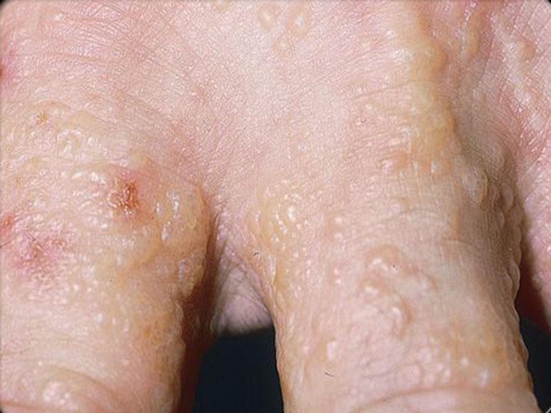 Ngứa da nổi mụn nước có một vài biểu hiện khá giống với những bệnh ngoài da khác.