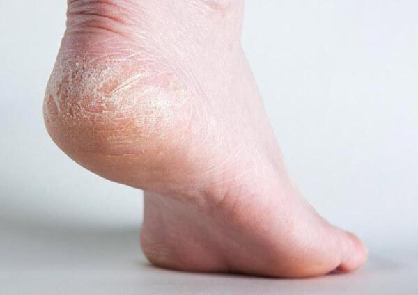 Da chân bị khô là tình trạng da gót chân và vùng xung quanh nứt nẻ, chai sạn