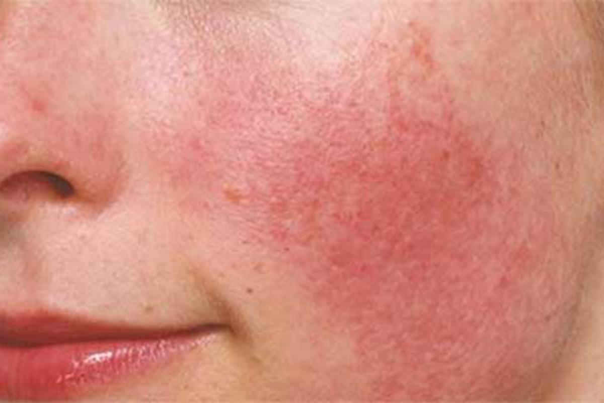 Da mặt bị ngứa và nổi mẩn đỏ có nhiều biểu hiện khác nhau