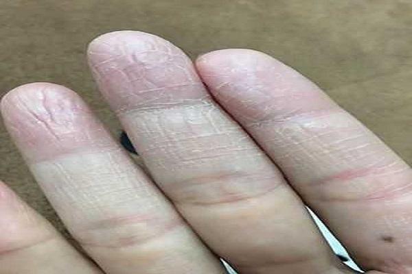 Bệnh nứt da tay sẽ có những biểu hiện khác nhau qua mỗi giai đoạn