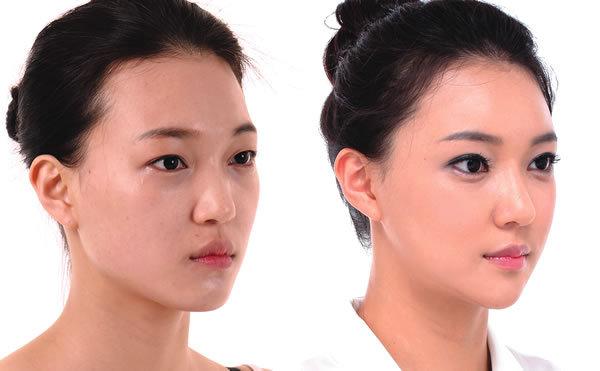 Trẻ hoá khuôn mặt bằng cấy mỡ tự thân có an toàn không?