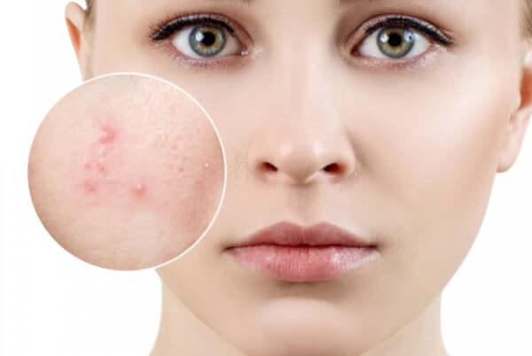 Mụn viêm với biểu hiện sưng đỏ, nổi to lên bề mặt da gây đau nhức