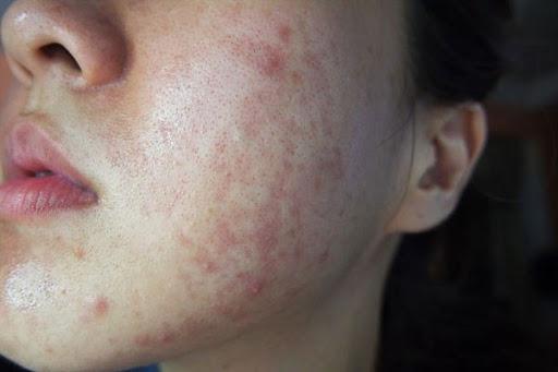Da mặt bị ngứa và nổi mẩn đỏ nếu không chữa trị sẽ gây nguy hiểm
